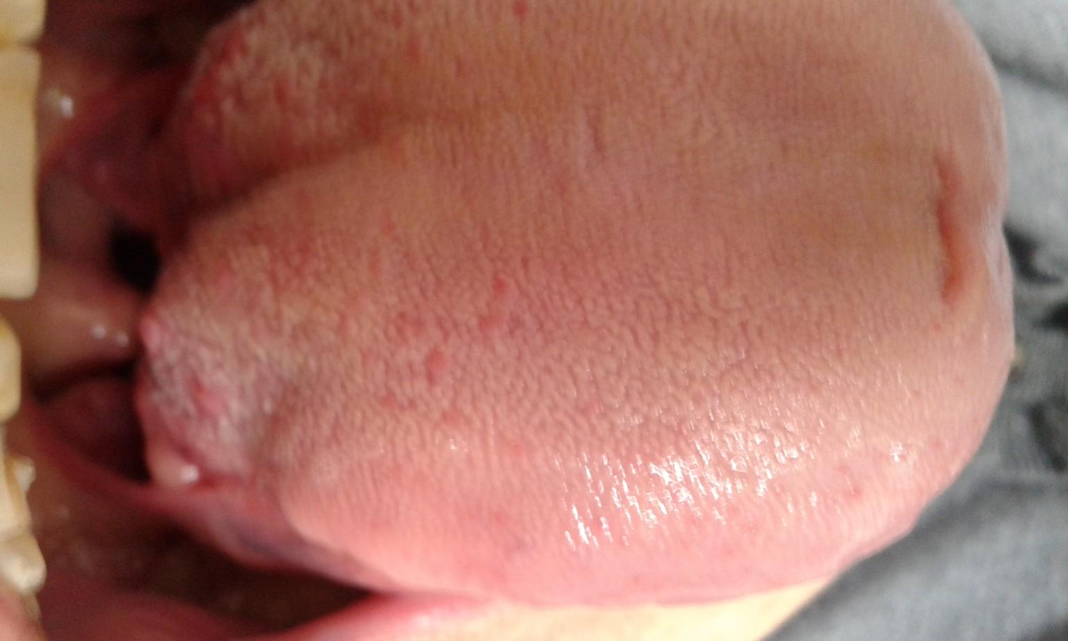 фото воспаление сосочков на языке