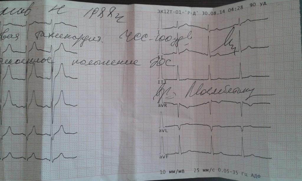 Толчки в сердце и учащение пульса
