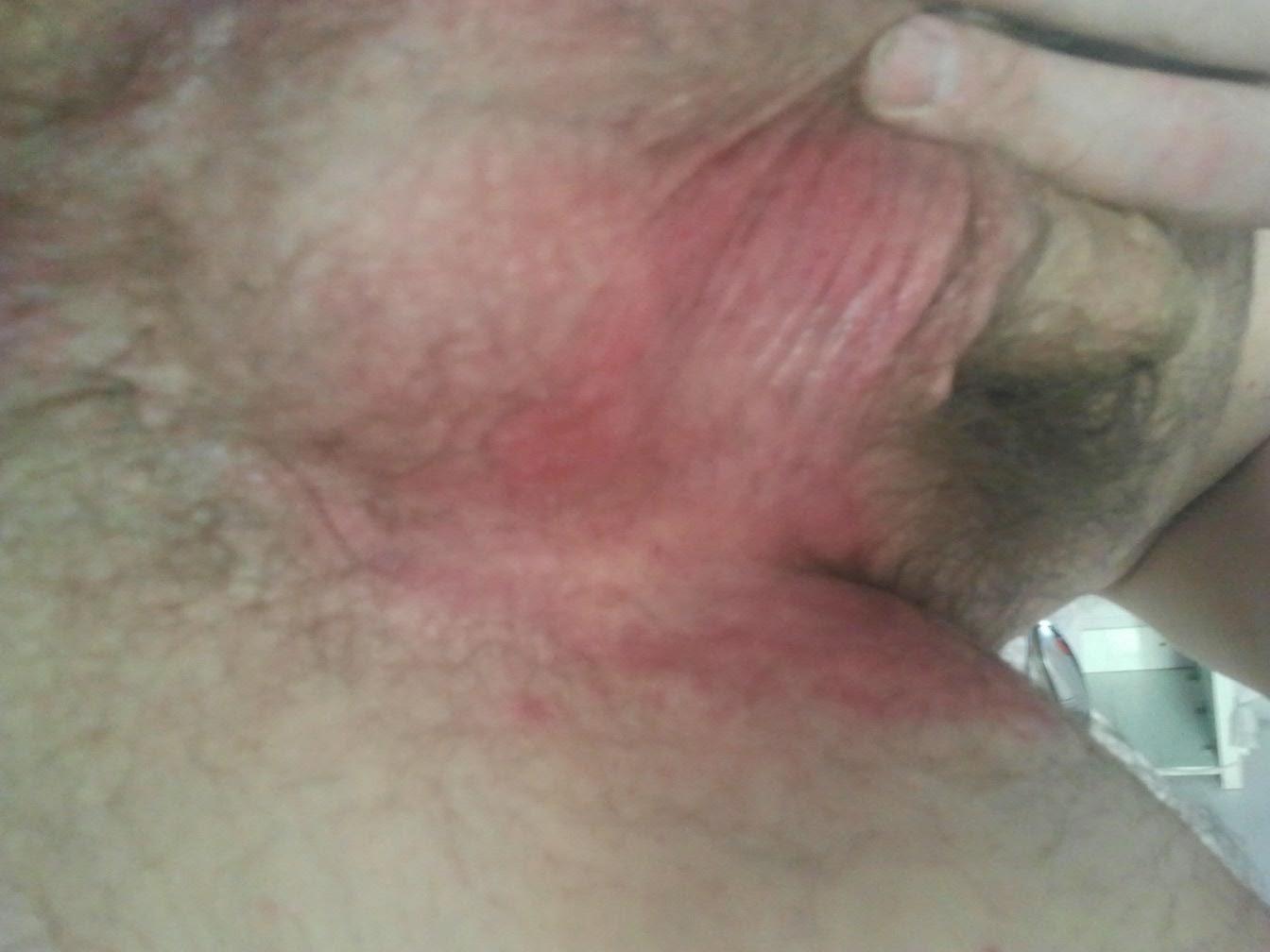 vospalenie-vozle-anusa