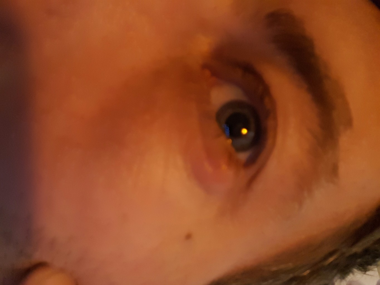 65 Как лечить ячмень на глазу у ребенка на верхнем веке в домашних условиях