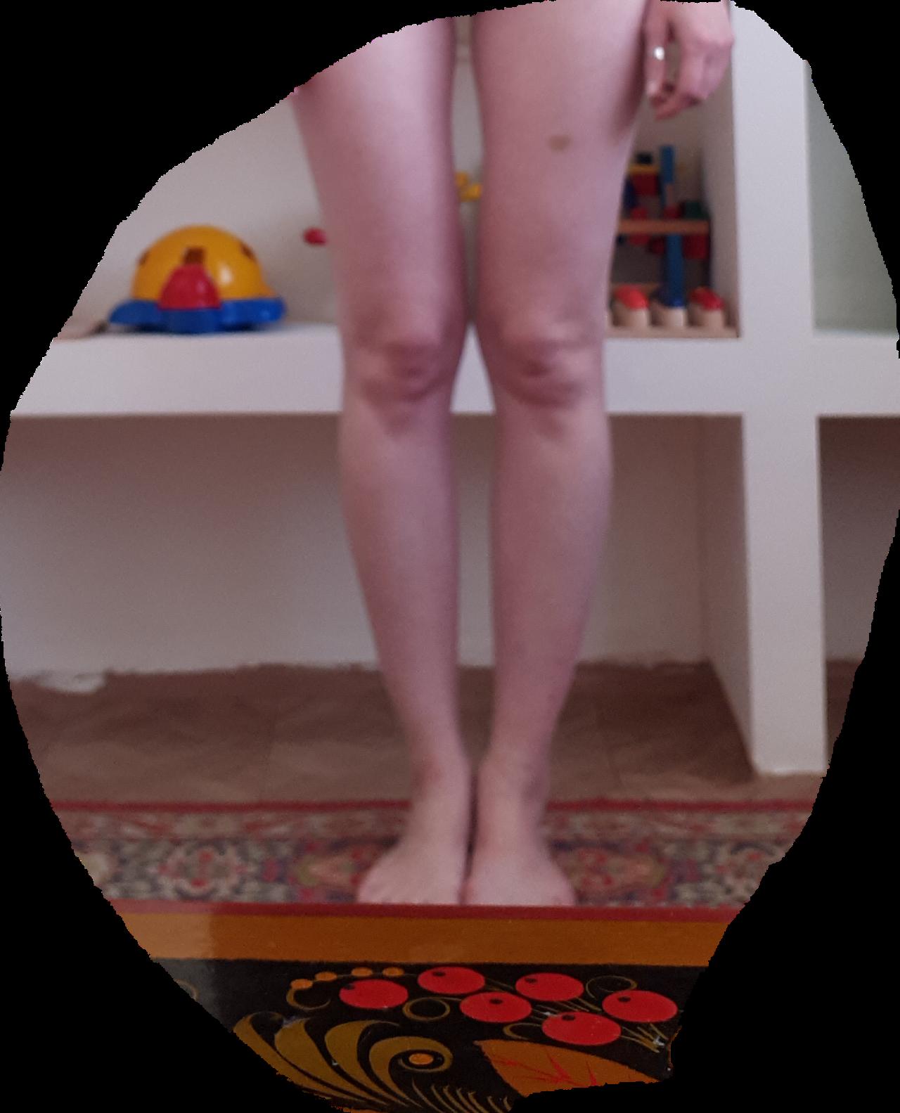 Х-образные или о-образные у детей как исправить ноги