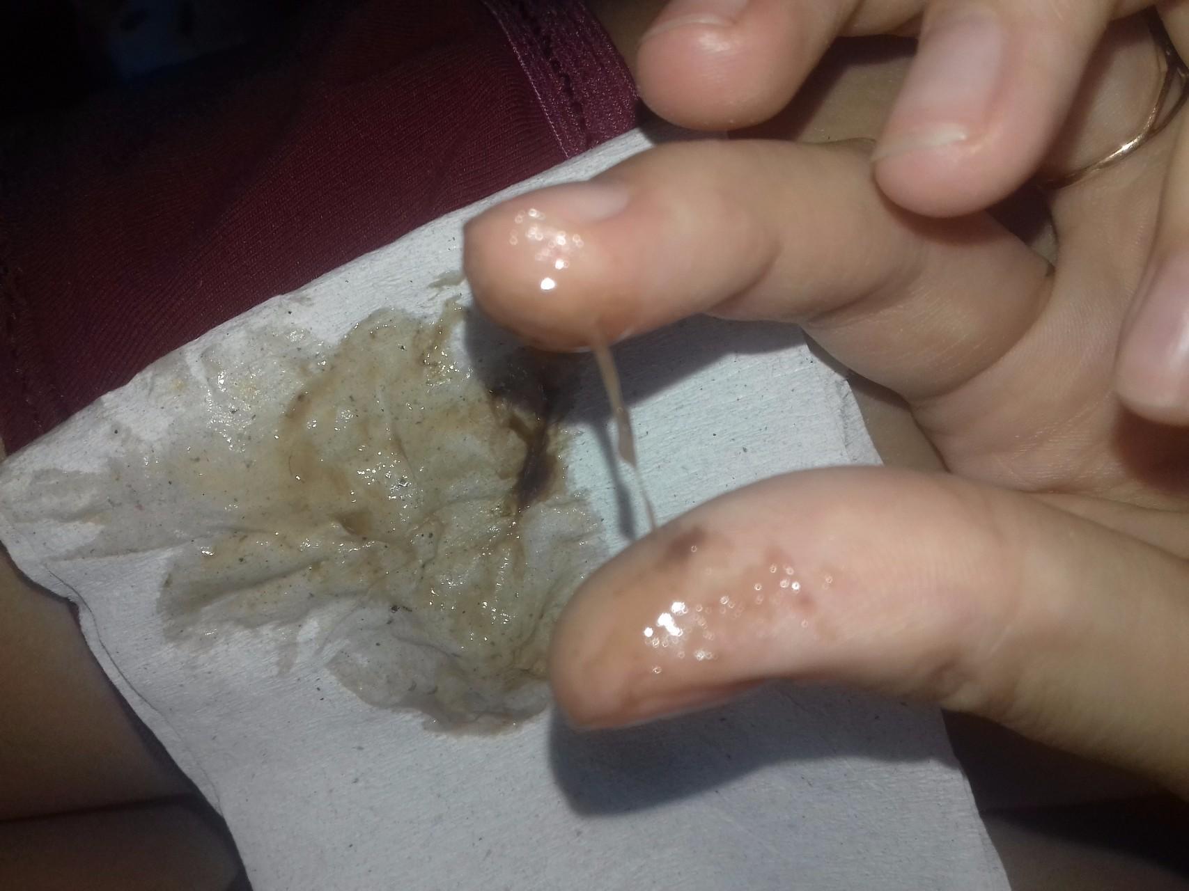 Макрофаги в сперме
