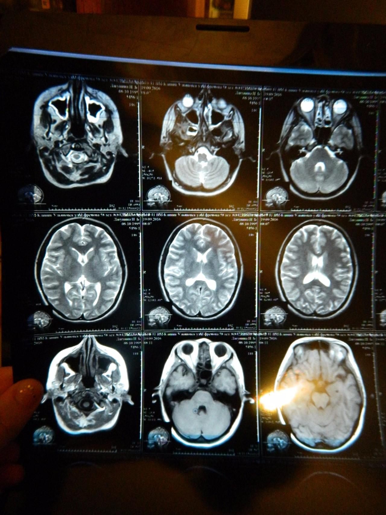 Мрт мозга ребенка фото