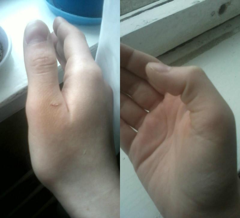 Когда сломал палец на руке что делать в домашних условиях 143