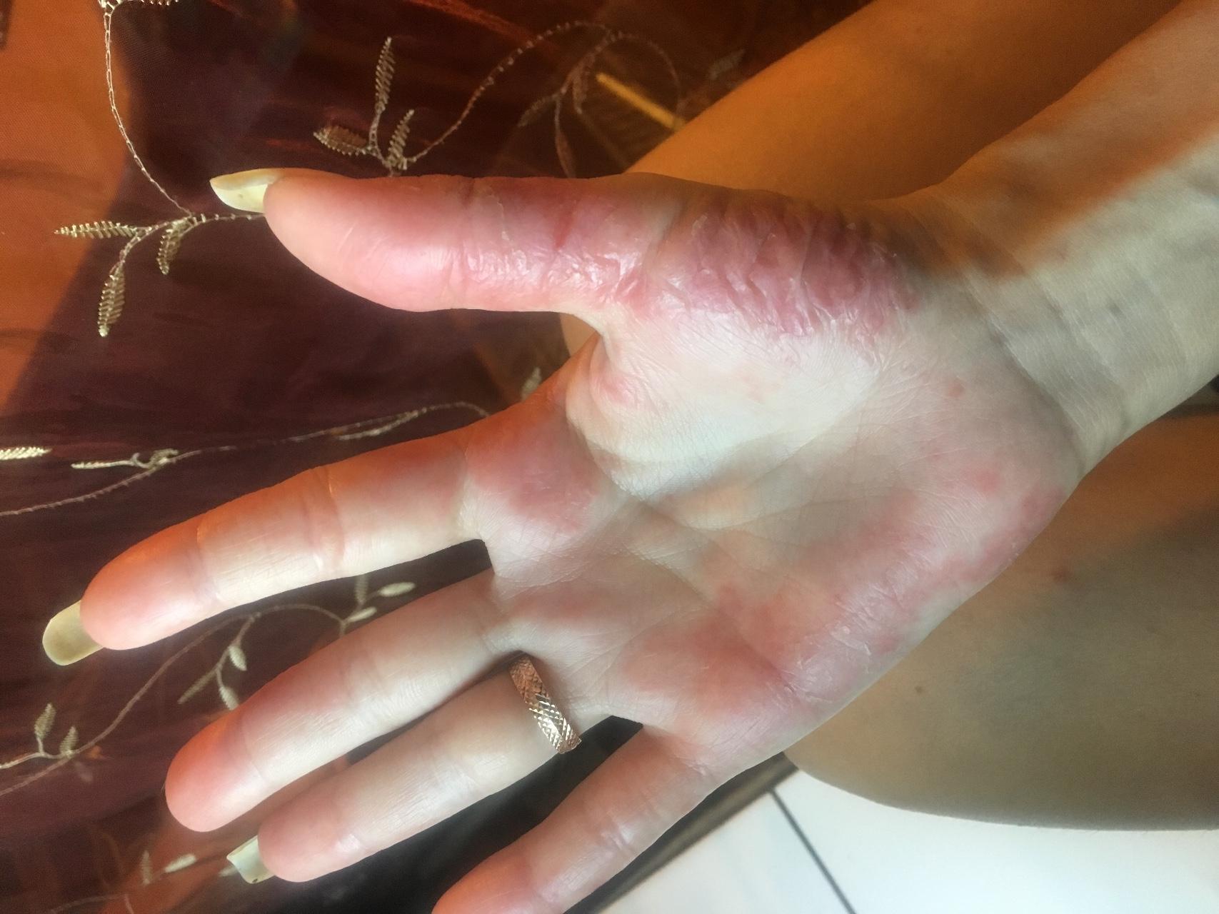 Как удалить пятна на пальцах фото