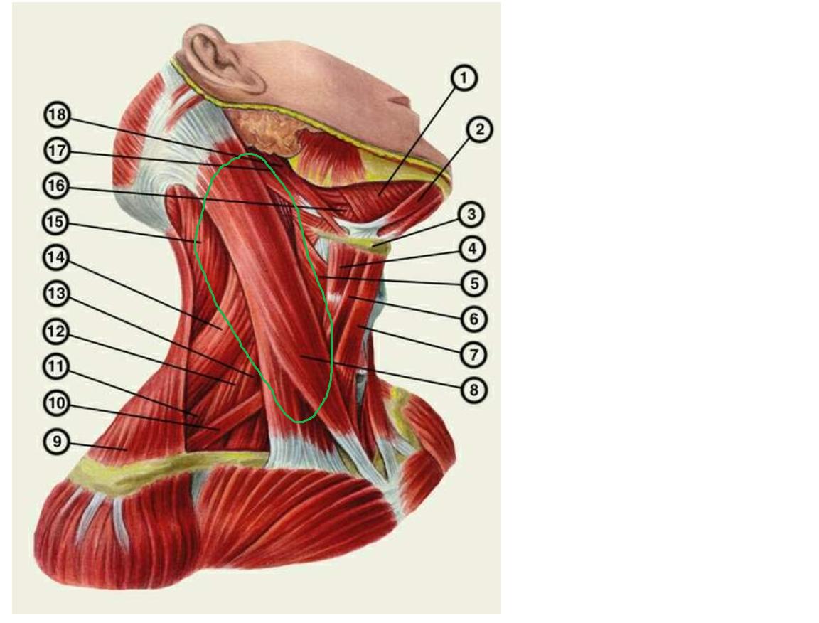 Застудила мышцы шеи что делать