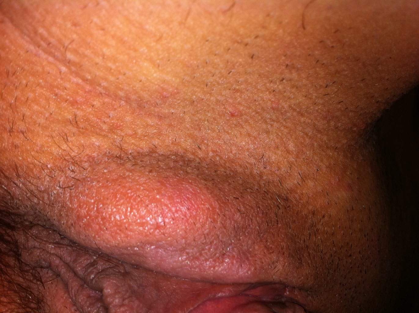 Pussy abscess