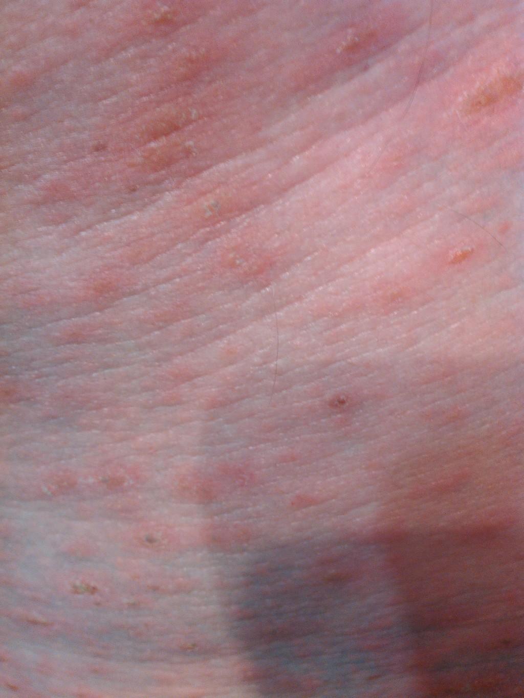 сыпь в паховой области у ребенка фото