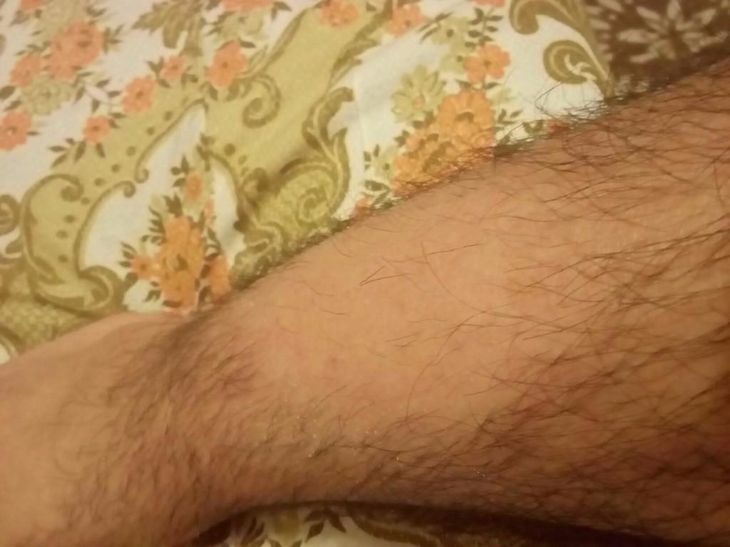 На ногах выпадают волосы причины