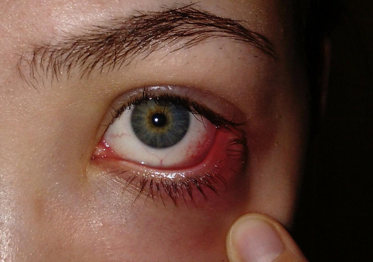 29 декабря делали склеропластику на оба глаза, сначала все было хорошо, выписали капли диклофенак, дексаметазон и сигницеф.