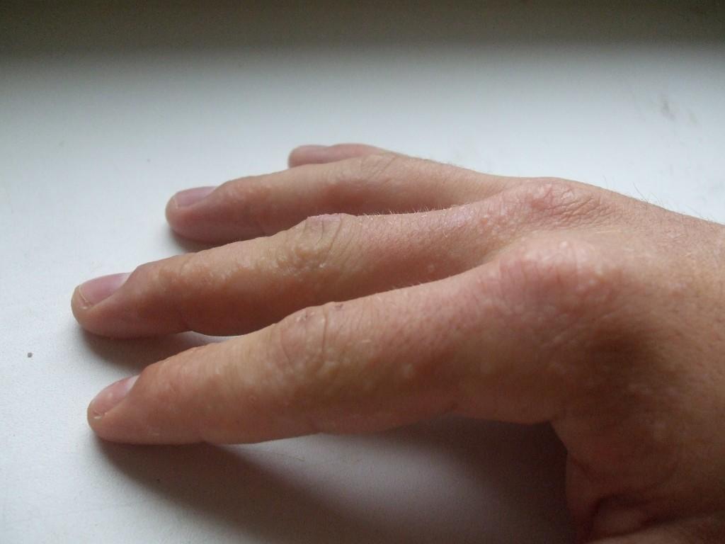 аллергия на серную мазь фото