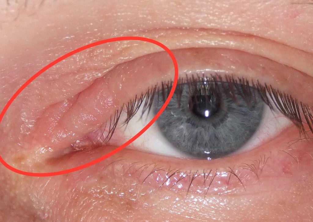 Как сделать чтобы глаза не опухали по утрам 34