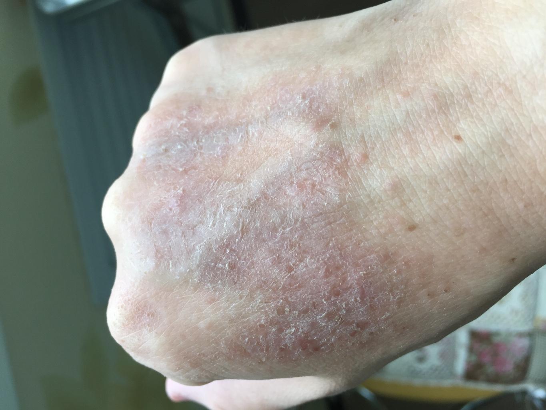 аллергия вылечила с помощью