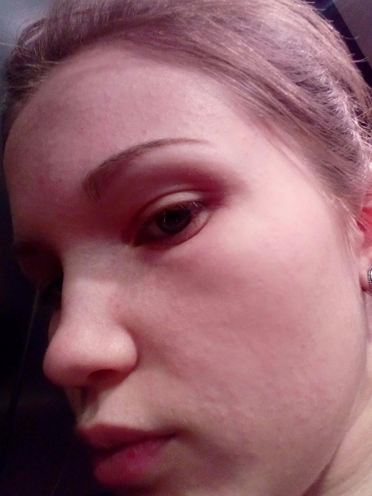 аллергия на пудру симптомы