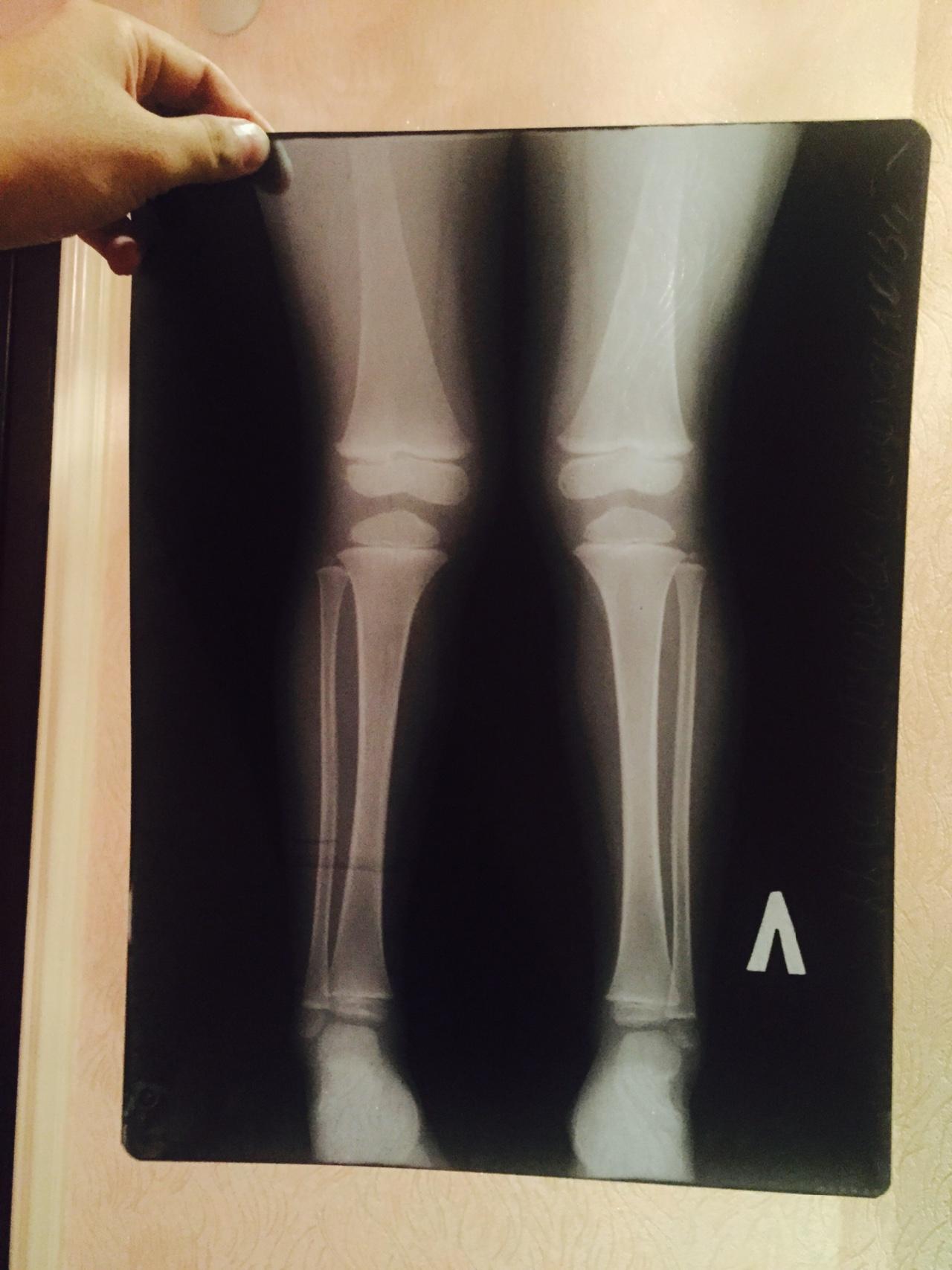 Фото х-образных ногах у детей