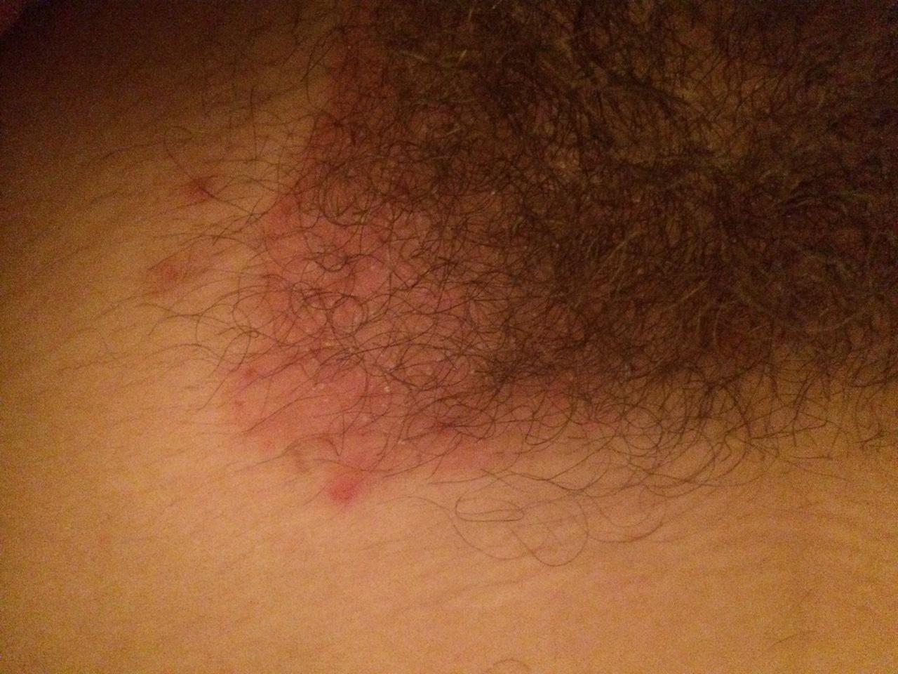 Зуд в интимных местах дерматолог