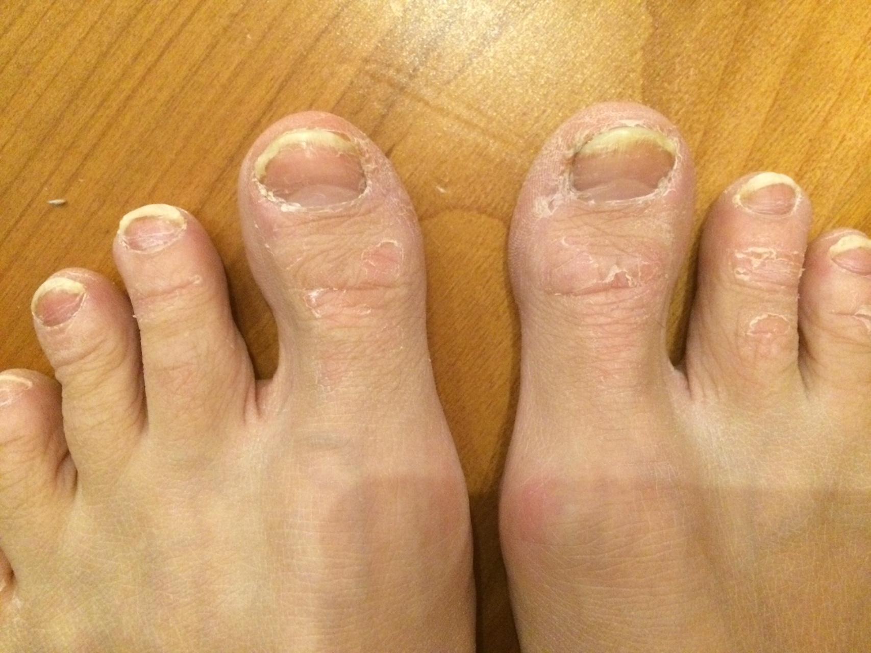 Где сдать анализ на грибок ногтей воронеж