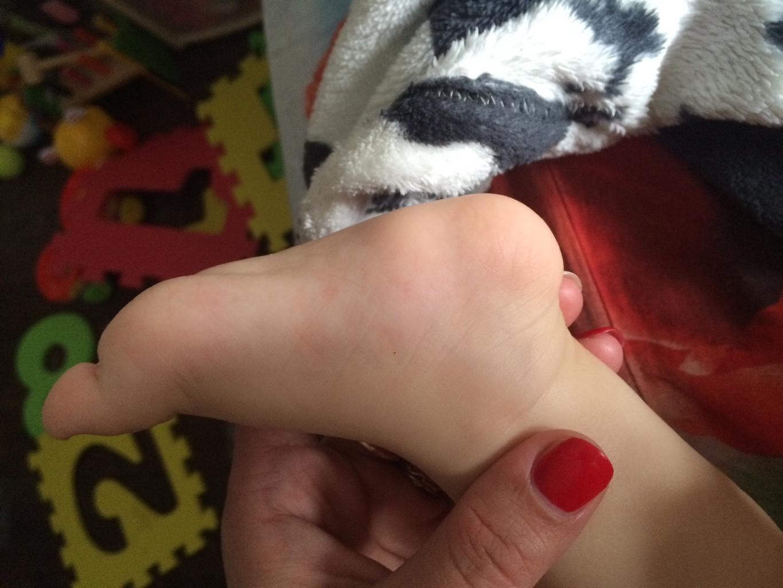 Гигрома у ребенка на ноге фото
