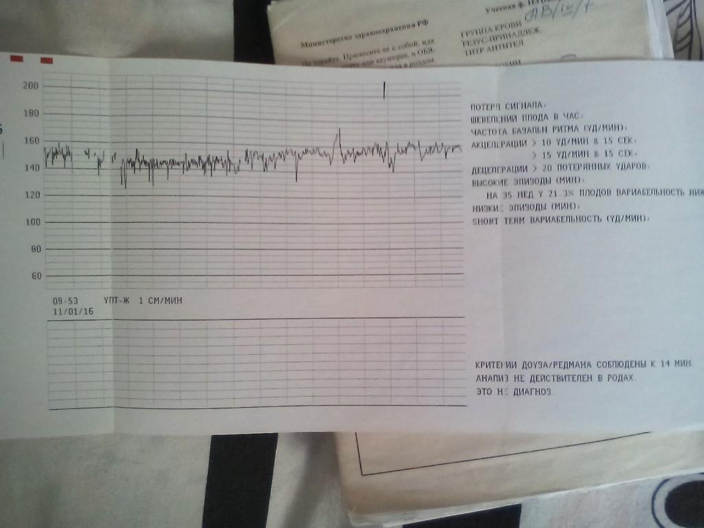 Норма stv при ктг в 32 недели