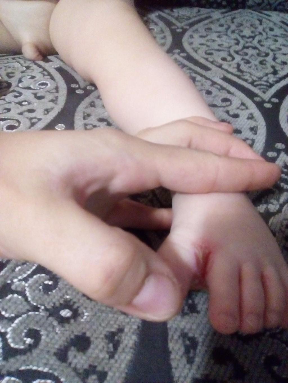 Жидкое лекарство от грибка ногтей