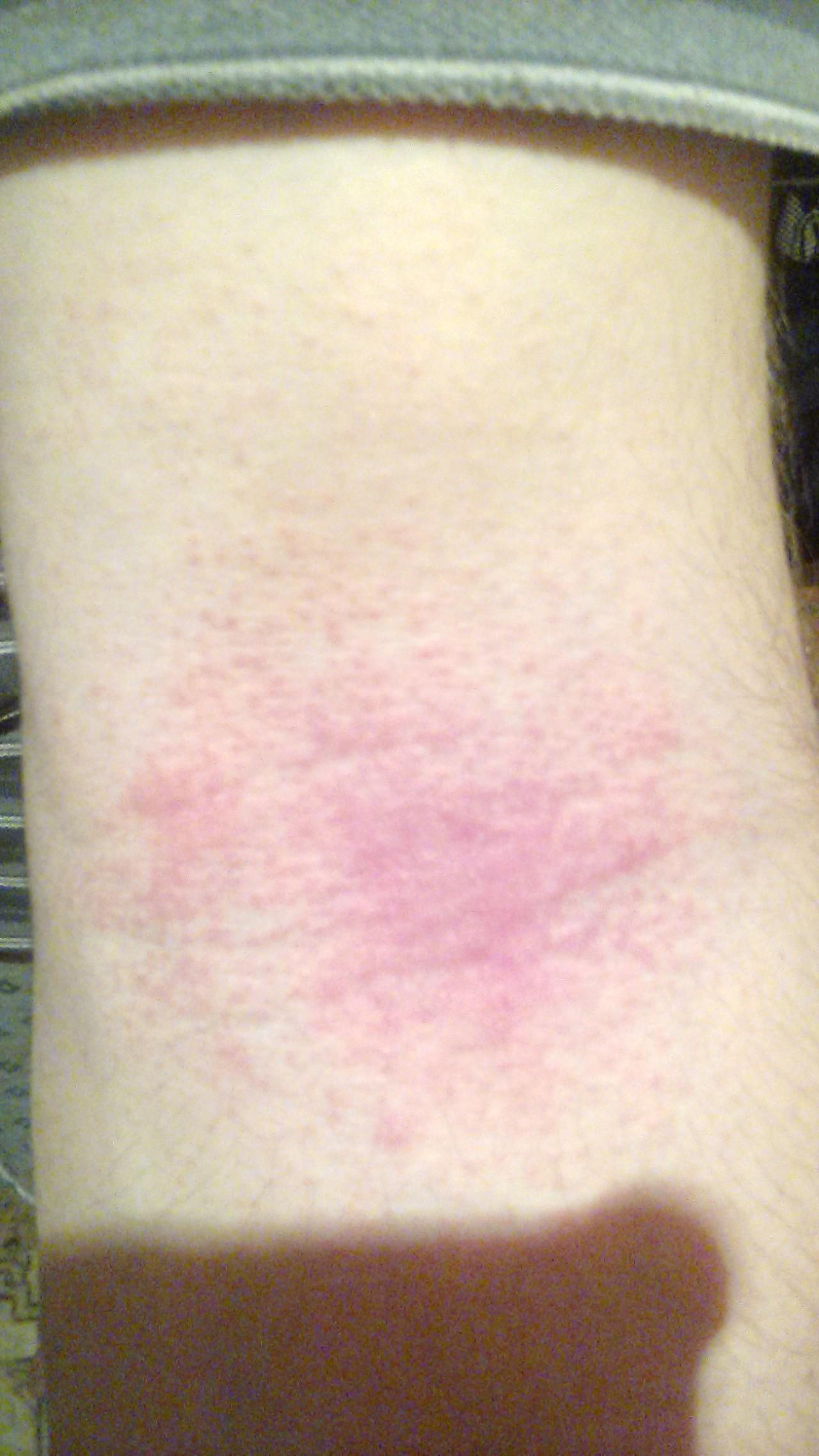 аллергия на акдс как проявляется