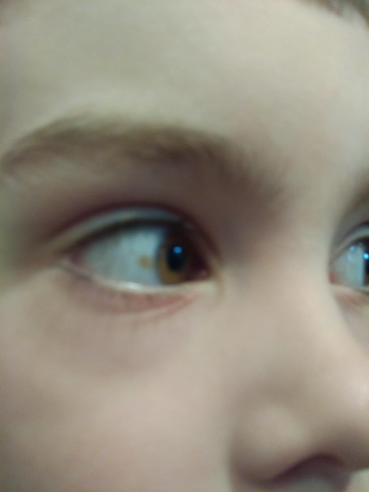 Нормальные у ребенка фото с пояснениями