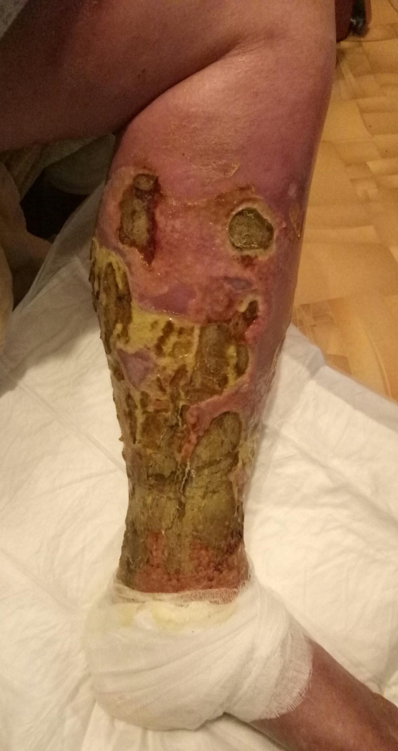 Язва на ногах лечить в домашних условиях