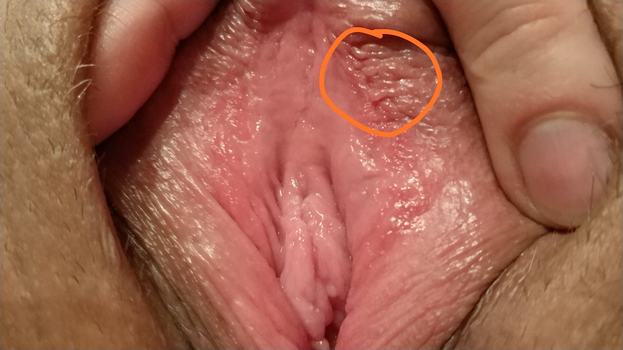 Vagina And Vulva Lumps And Bumps