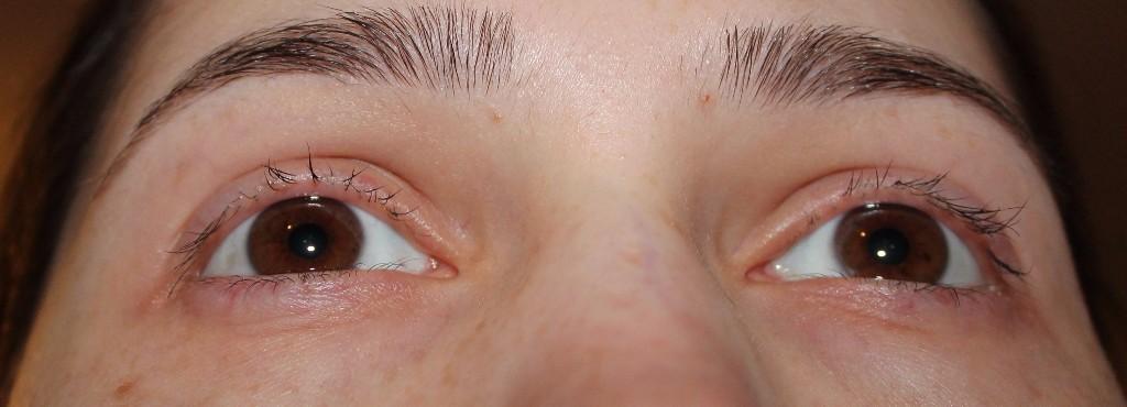 Как сделать чтобы глаза не опухали по утрам 801
