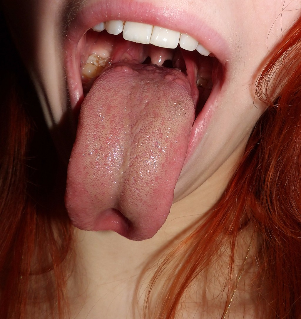 tongue-shots