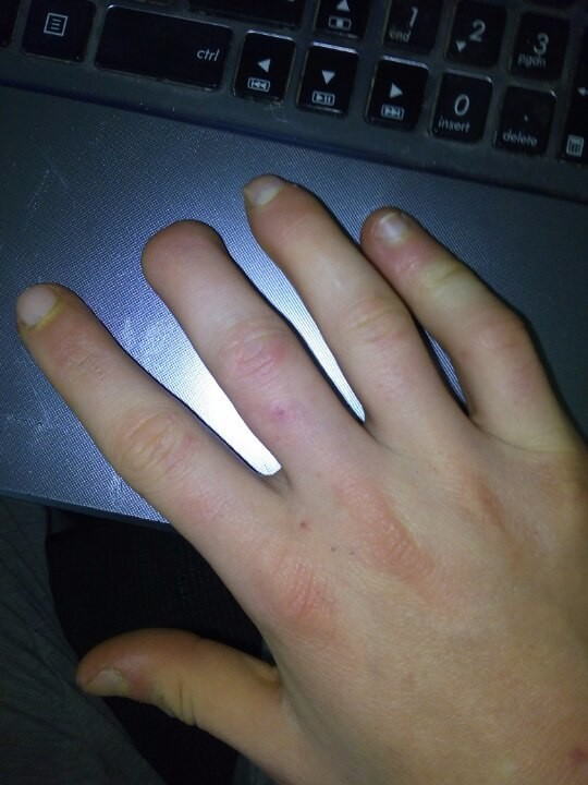 Что такое панариций на пальце руки в домашних условиях 226