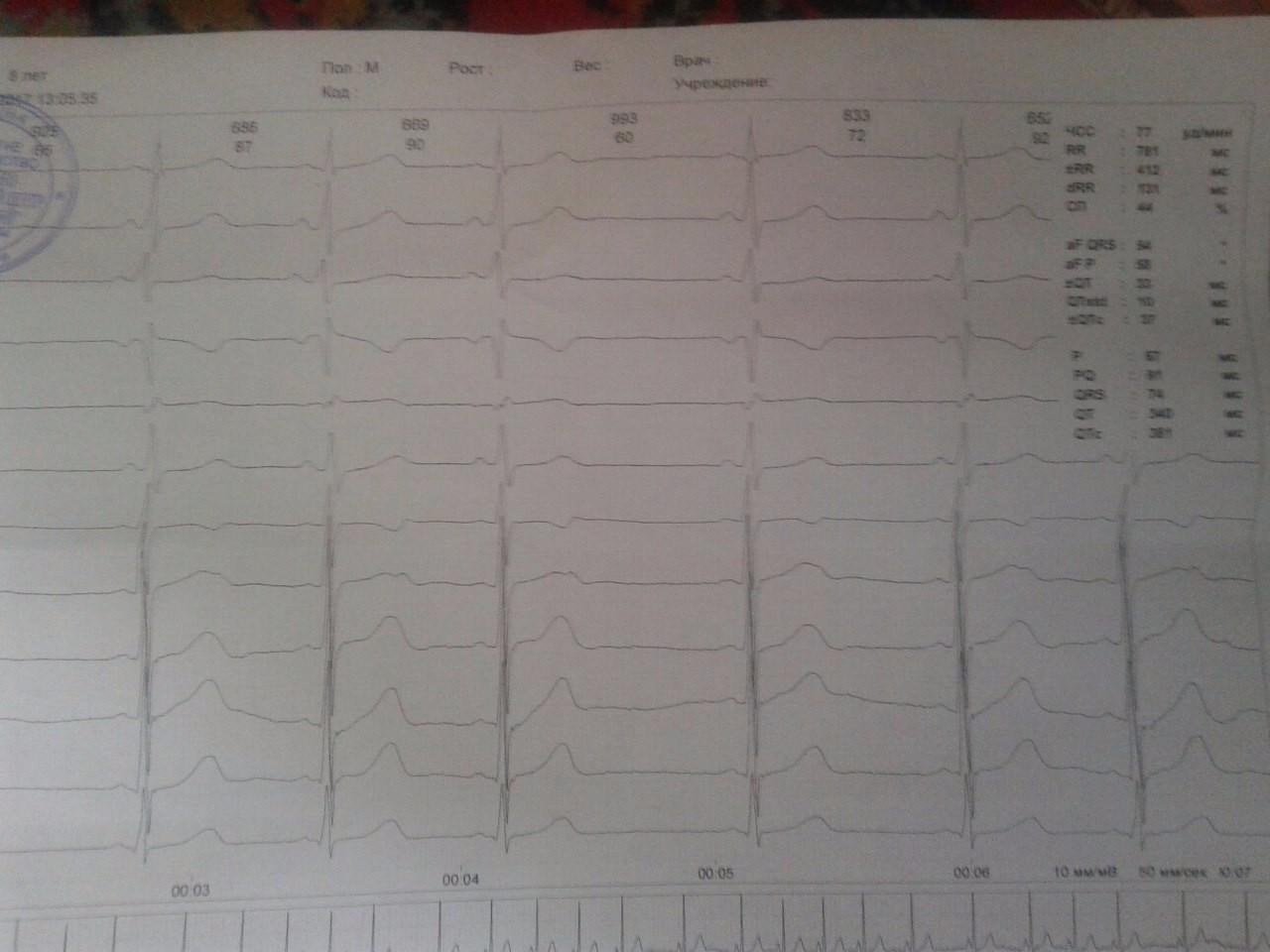 Синдром укороченного pq при беременности