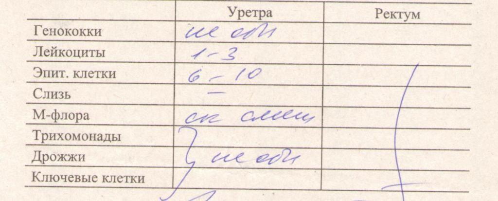 o-chem-mozhet-skazat-mazok-iz-vlagalisha