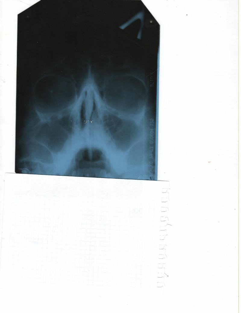 Пневматизация фото