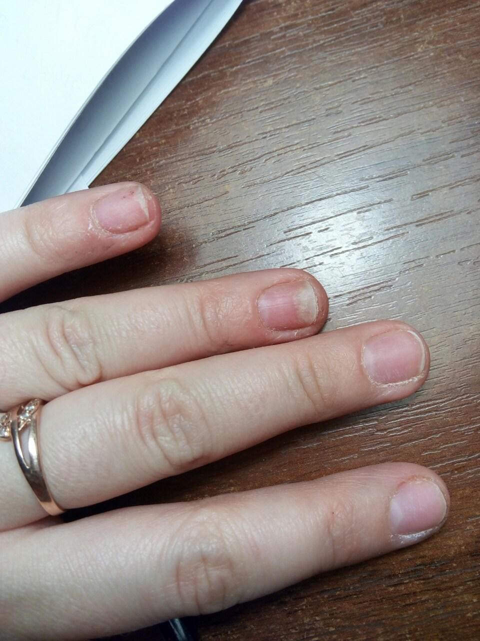 Ногти на руках отходят от кожи фото