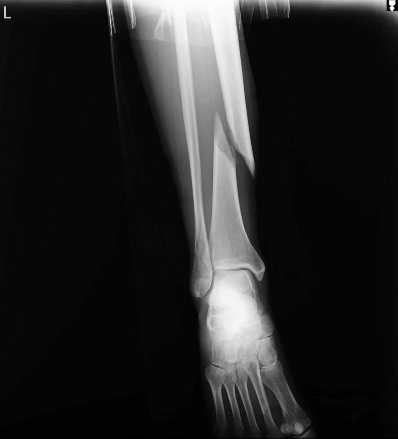 Картинки перелома костей голени