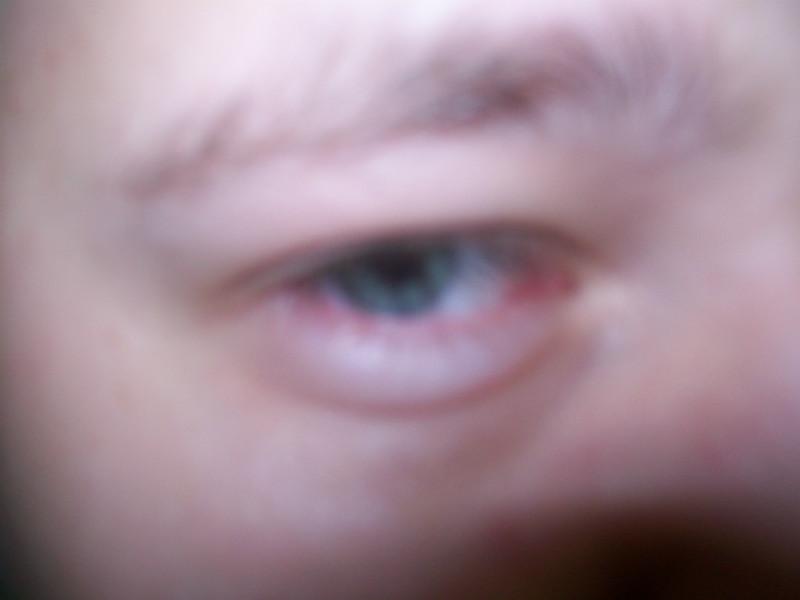 Ячмень под глазом как лечить фото 109