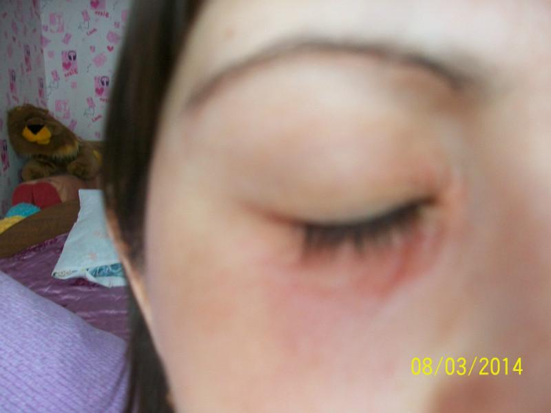 опухли веки аллергия что делать