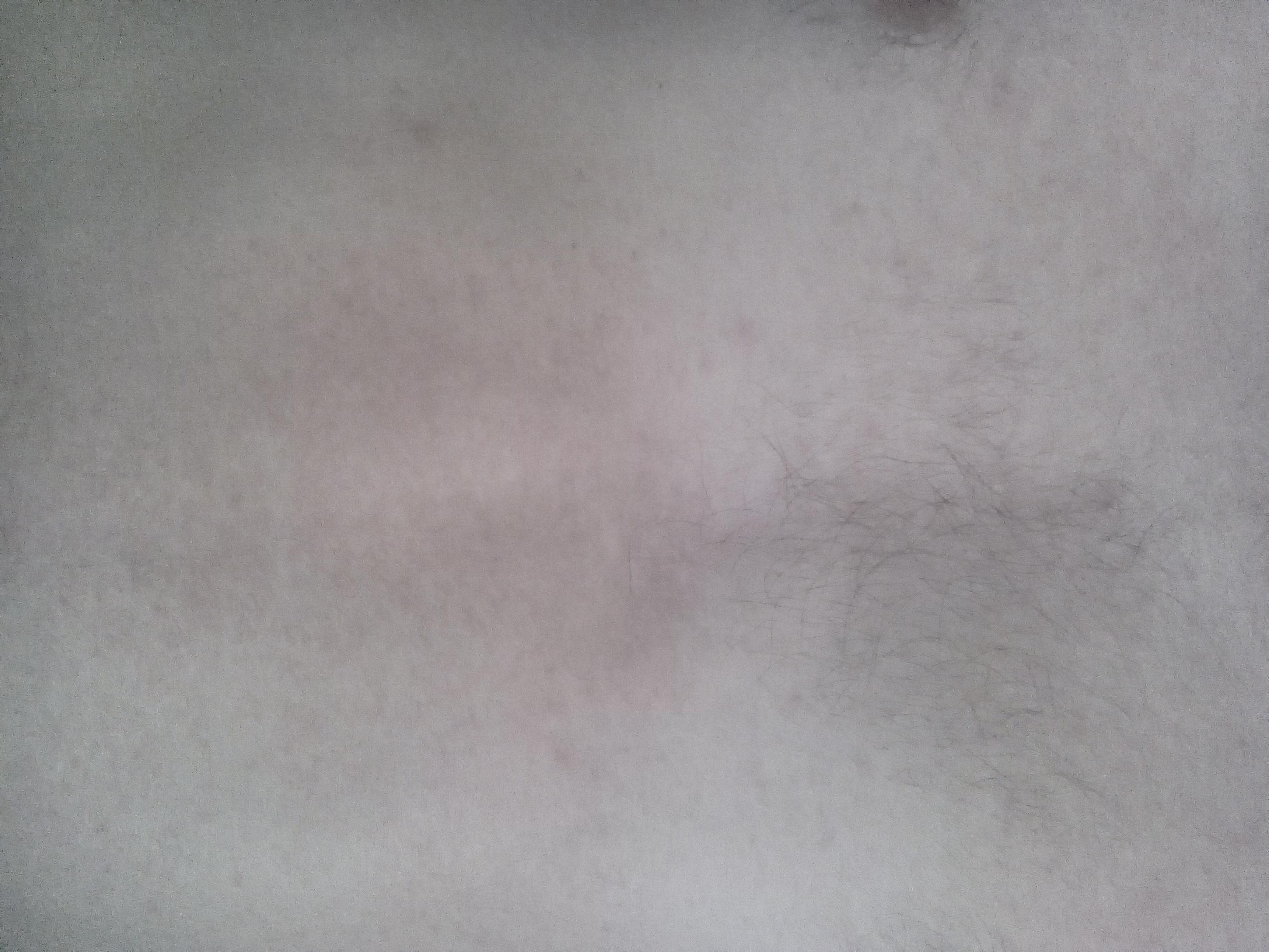 телеангиэктатические пятна на лице фото