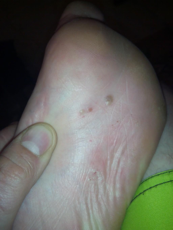 Волдыри на ступнях ног как лечить