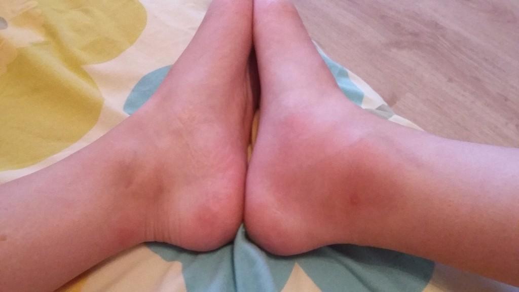 Отекают ли ноги при грибке