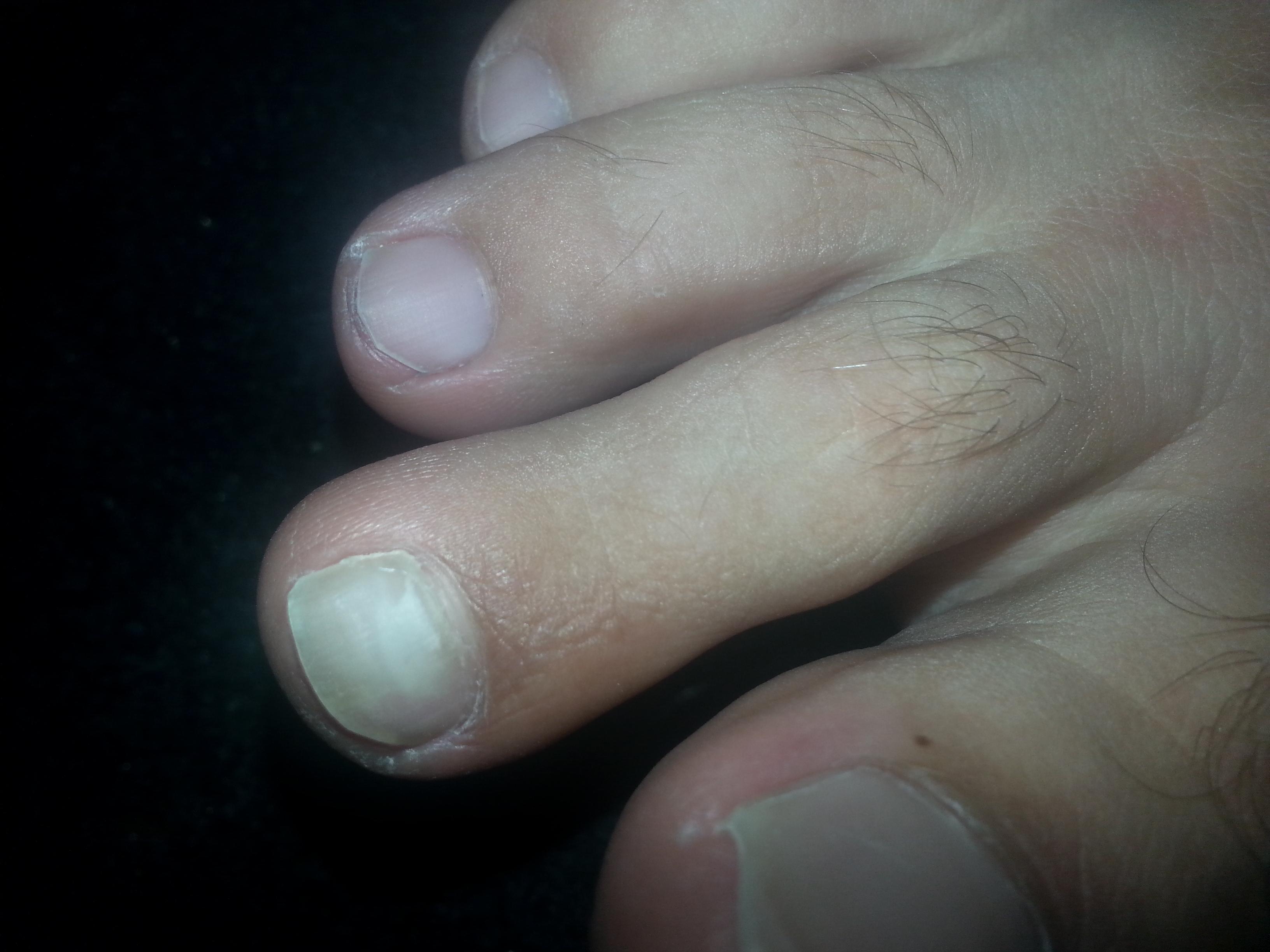 Грибковые ногти на ногах как лечить