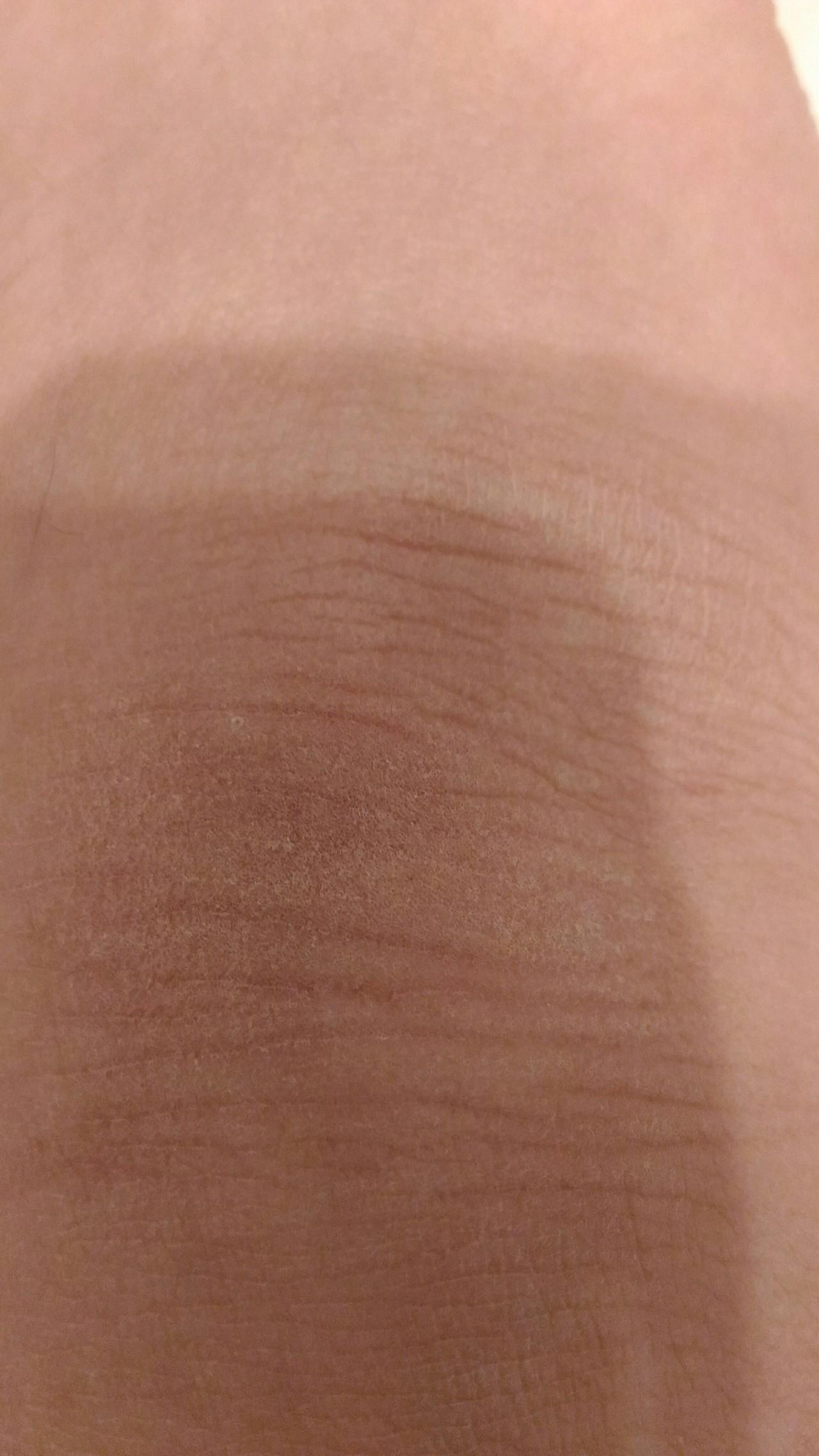 сухая кожа на ноге возле косточки