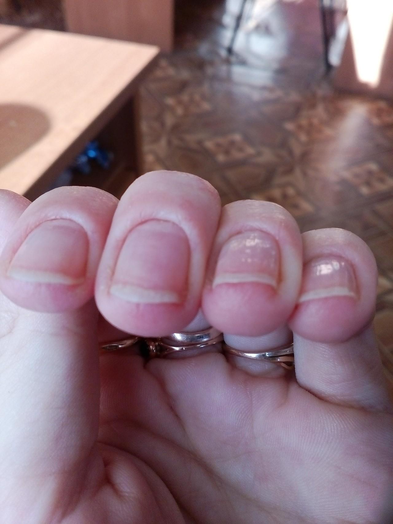 Опухоль на пальце ноги около ногтя