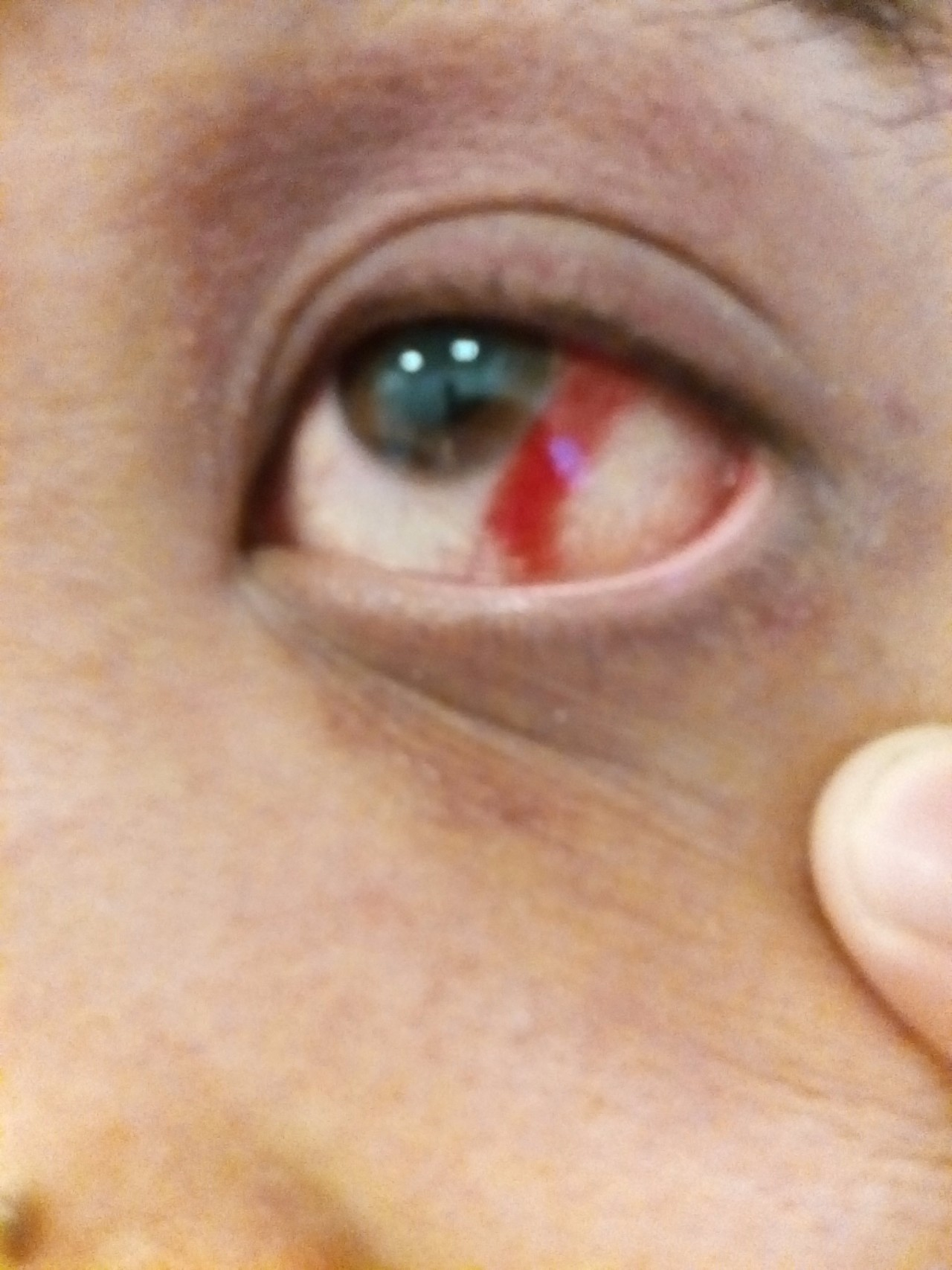 Как снять отёчность с глаз в домашних условиях