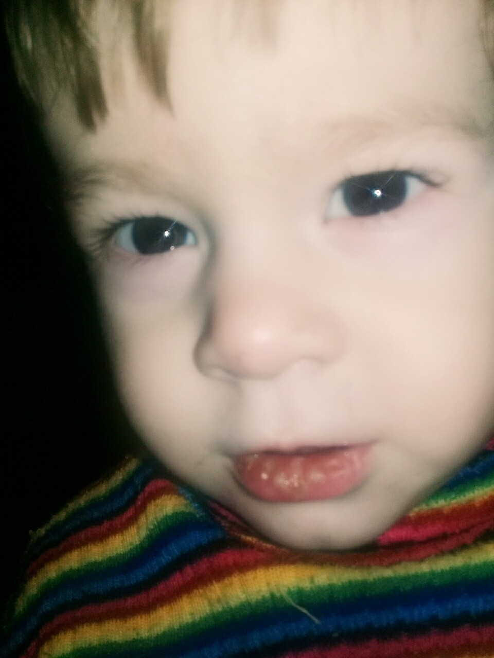Срослись малые и большие губы у ребенка фото