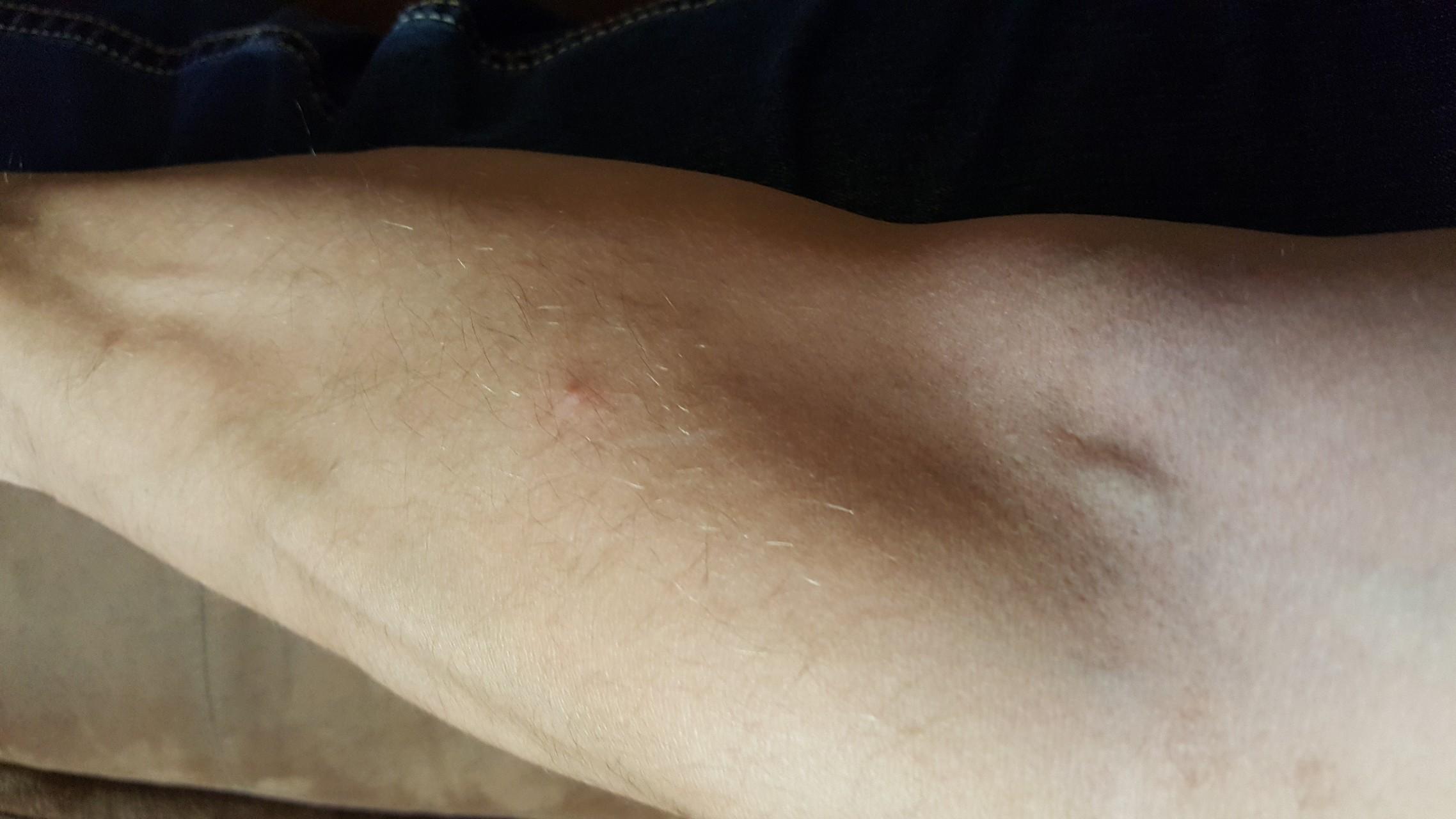 аллергия в виде пупырышек