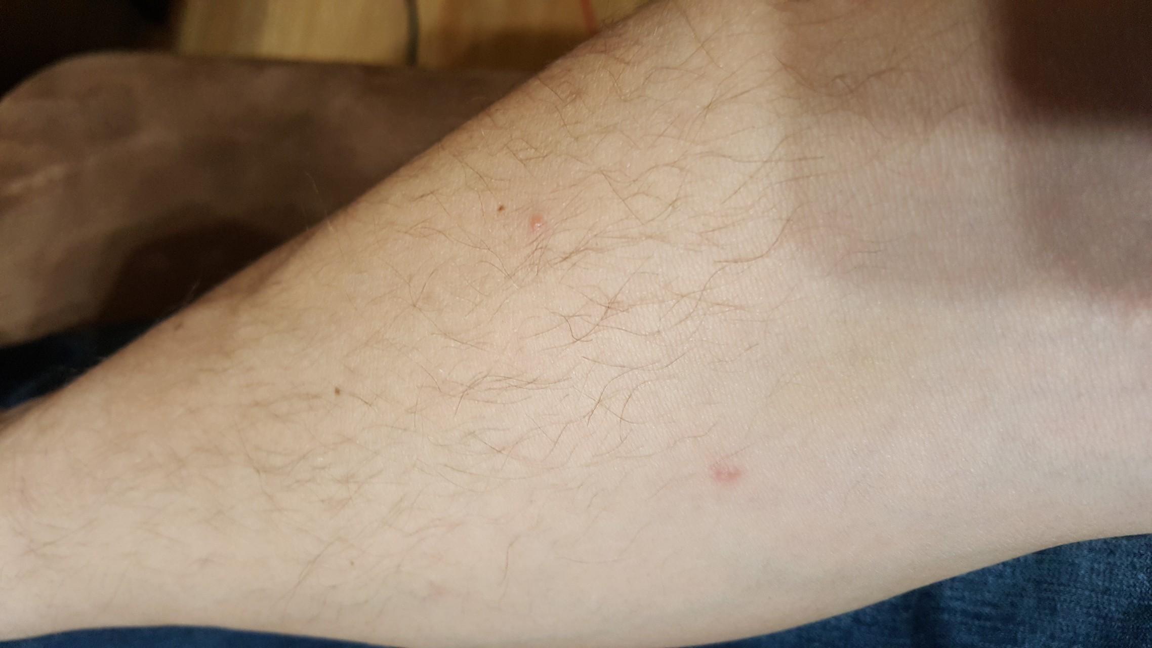 аллергия сыпь на теле чешется