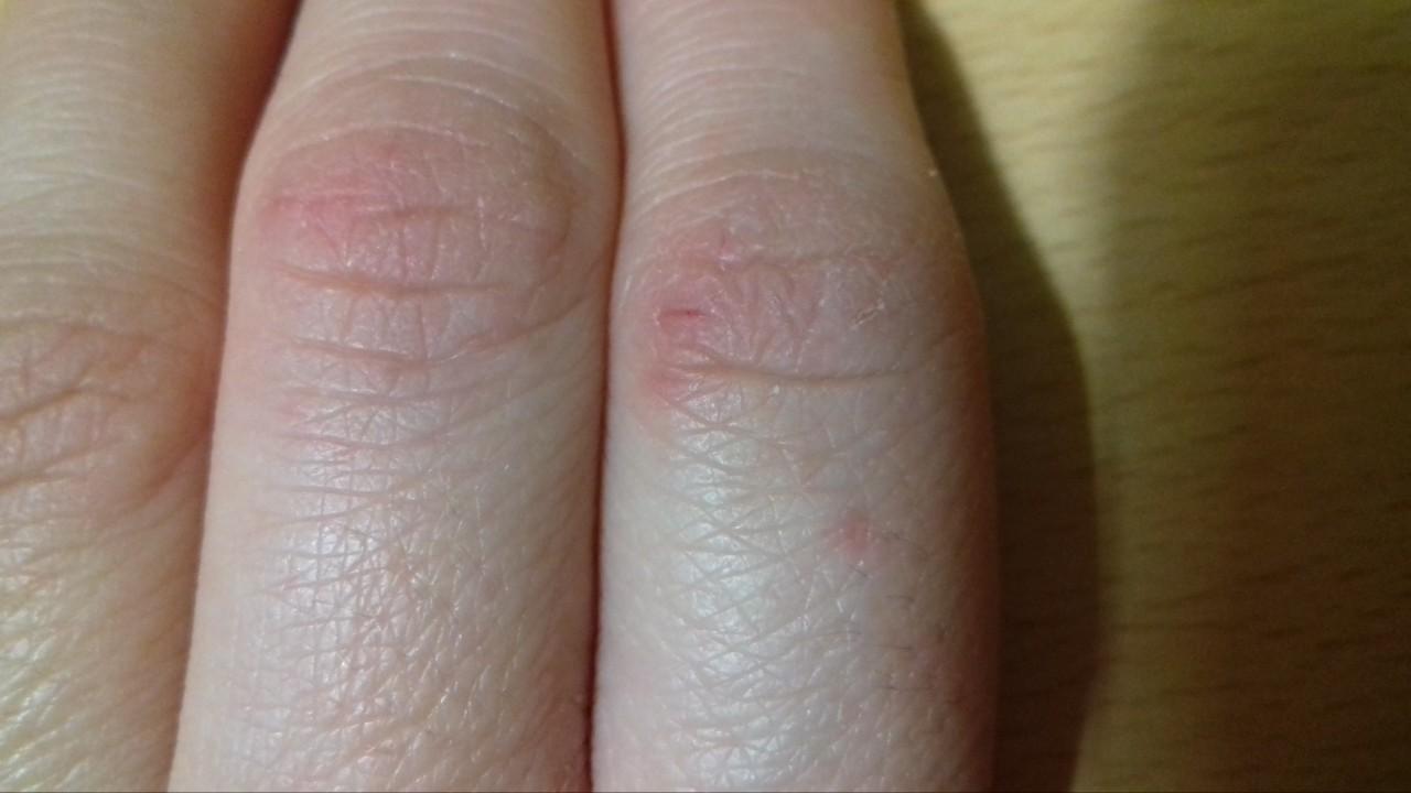 аллергия на сгибах рук и ног