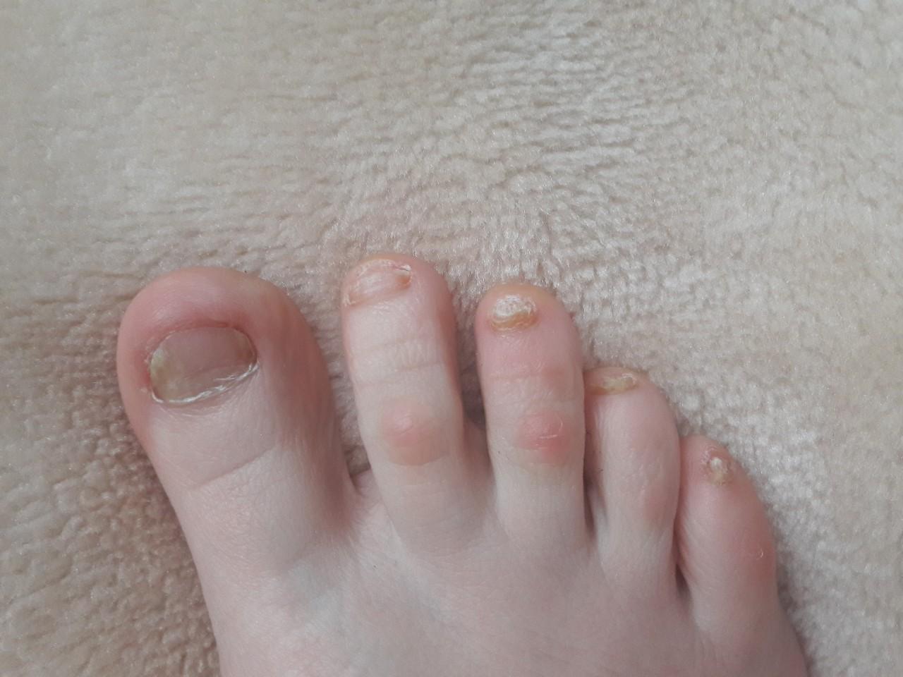 Лечение грибка ногтя в домашних условиях запущенная форма